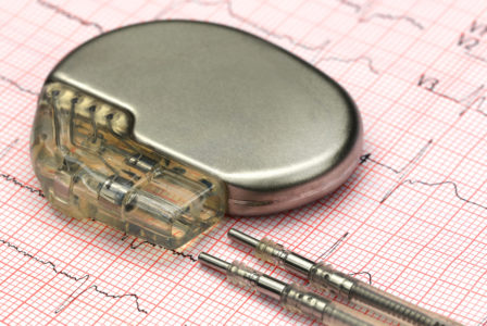 pacemaker-e1510138166136-99c606cbdb3c435834980c3429f5a36abf6ce12c